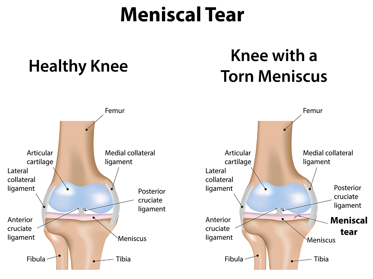 Knee meniscus: rupture, treatment, restoration of functionality 16