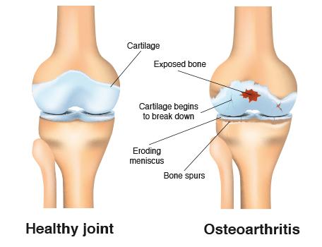 The Young Arthritic Knee\u0027