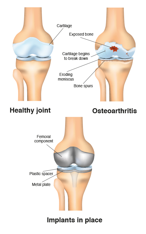 Arthritic Knee, Arthritis, Knee Surgery