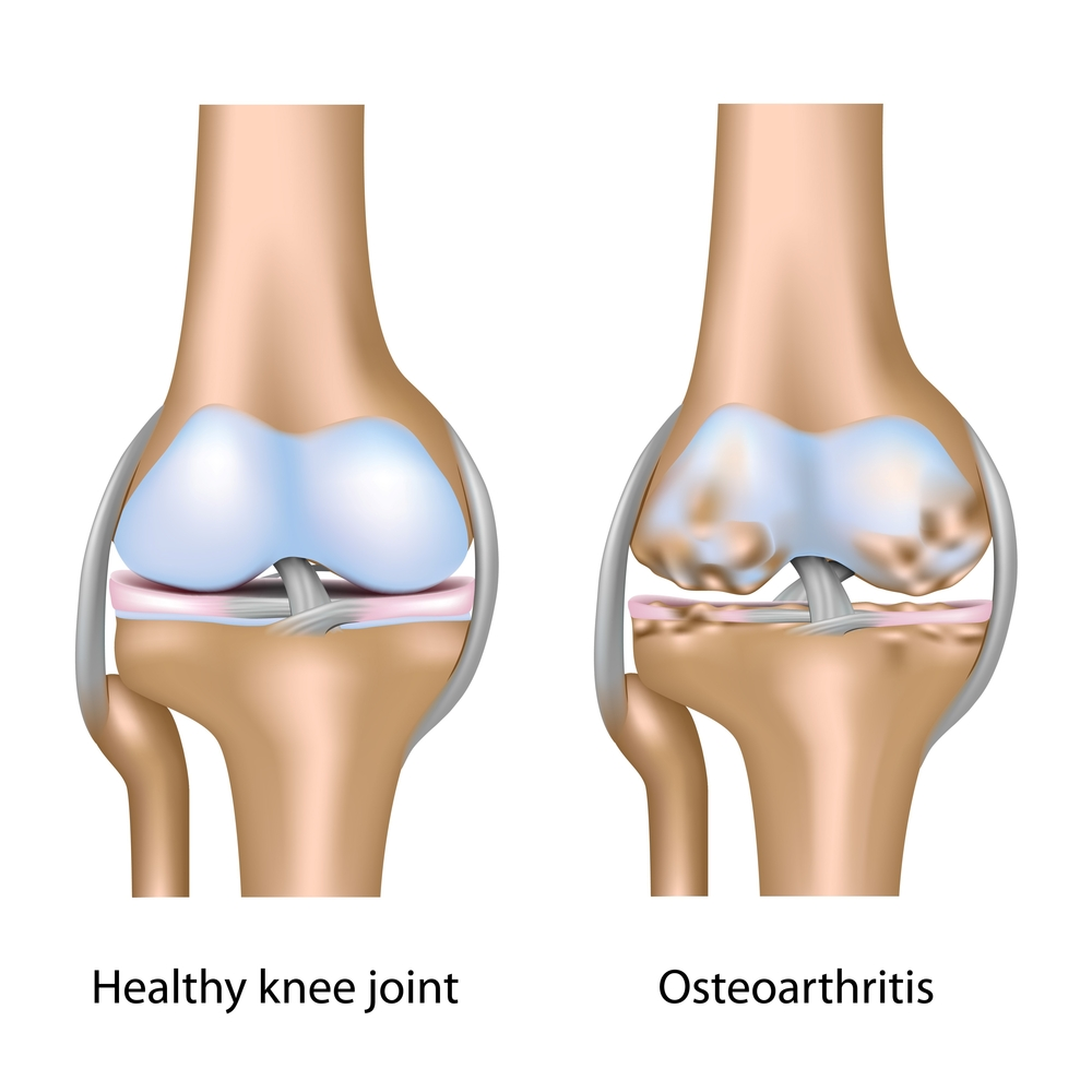 Knee with Osteoarthritis at Sports Surgery Clinic Dr Barry Sheane