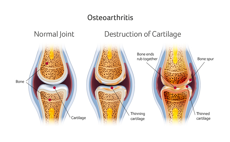 Common symptoms of knee pain and knee injuries explained cartilage osteoarthritis knee surgery santry ccuart Image collections