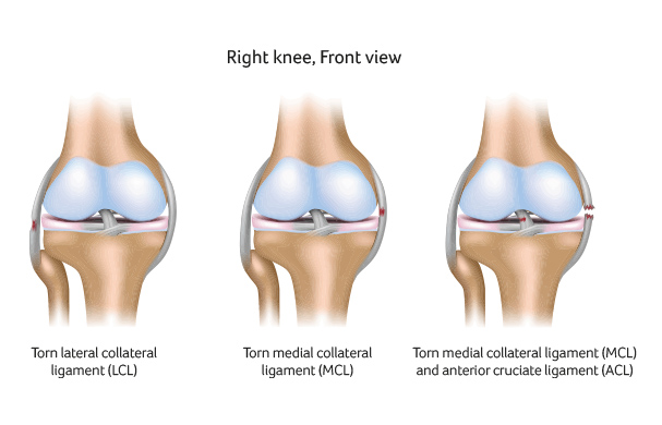 Medial Collateral Ligament (MCL) Knee Surgery Santry