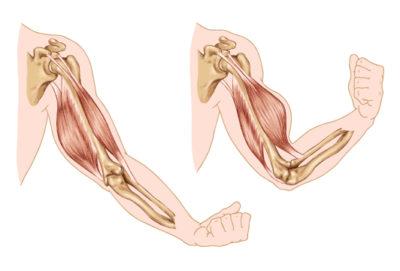 Elbow injuries Santry Dublin 9