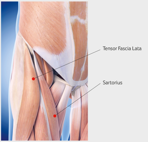 Pain associated with a labral tear