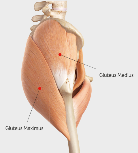 GLUTEUS MEDIUS TENDINOPATHY at the Sports Surgery Clinic Dublin